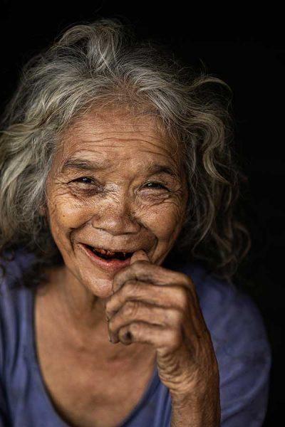 Smile-black-teeth-2