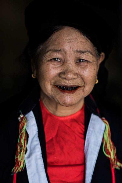 Smile-black-teeth